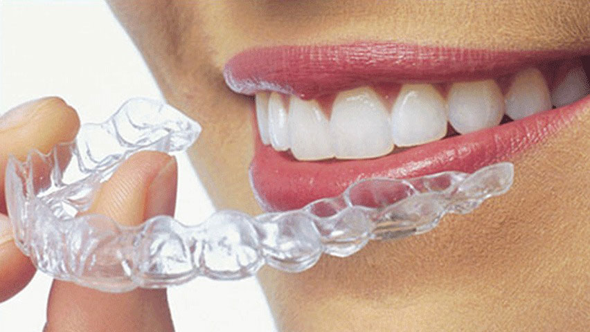 Benefits of Aligners