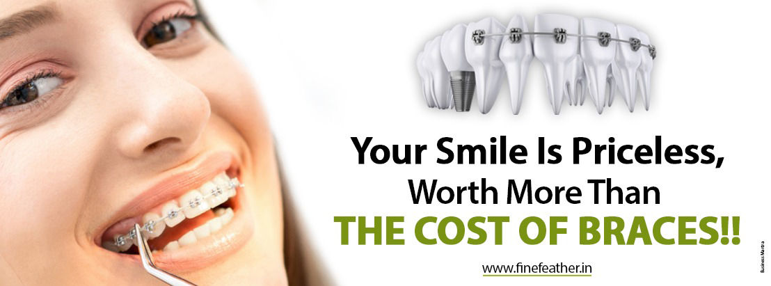 Your Smile is priceless, worth more than the cost of braces