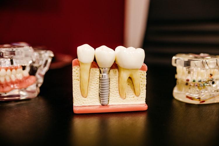 Dental Implant for missing teeth