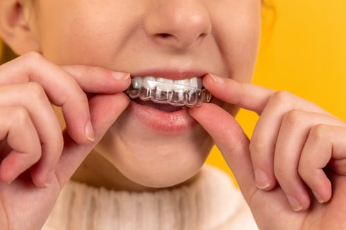 Clear Aligners – The Best Way to Correct Uneven /Crooked Teeth